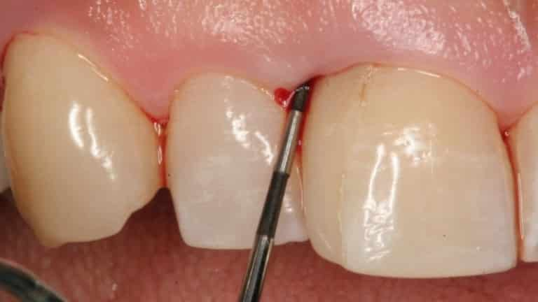 Воспаление десны около зуба лечение антибиотиками