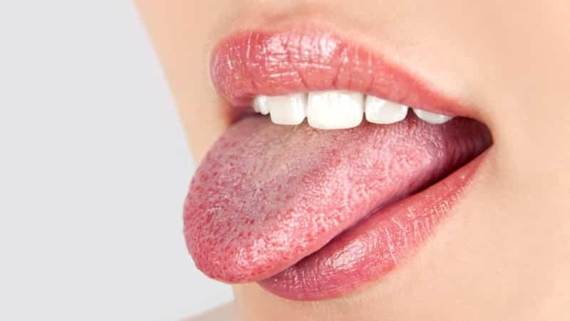 заболевание полости рта у взрослых фото