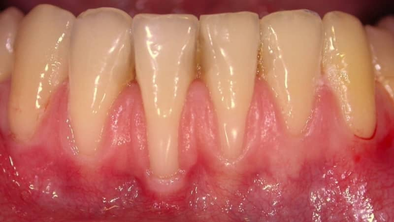 инфекционные заболевания полости рта и языка фото