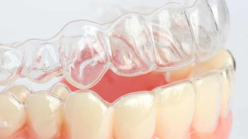 капы для выравнивания зубов исправления прикуса у детей фото сколько стоят,