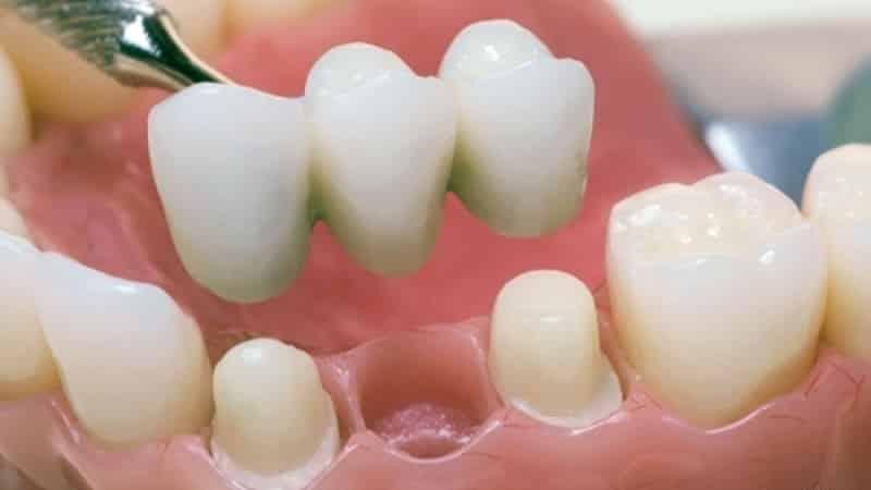 сколько стоит поставить зубной имплантант
