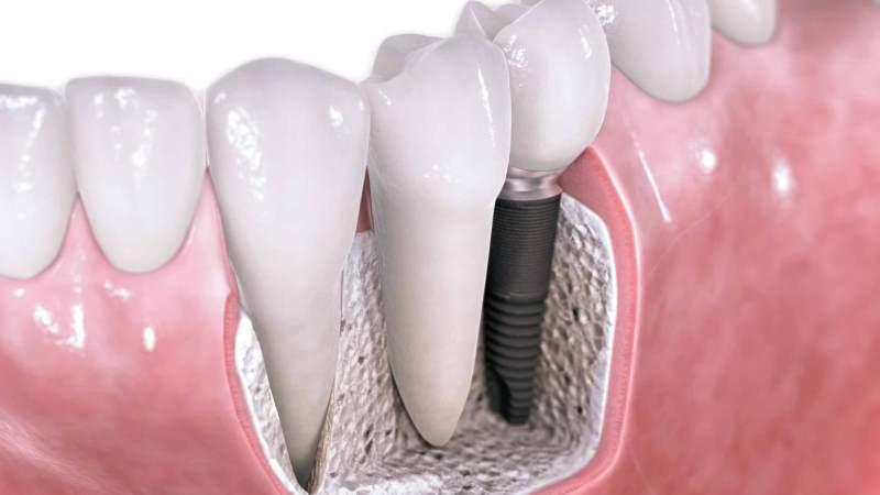 осложнения после имплантации зубов на нижней челюсти