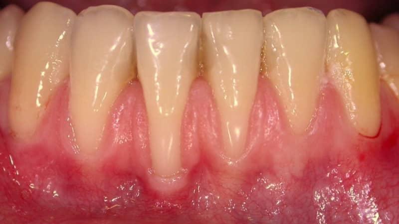 зубы чешутся десна у взрослого человека почему что делать