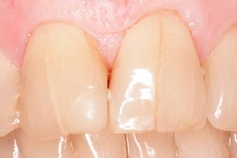 Отвалился кусок зуба что делать
