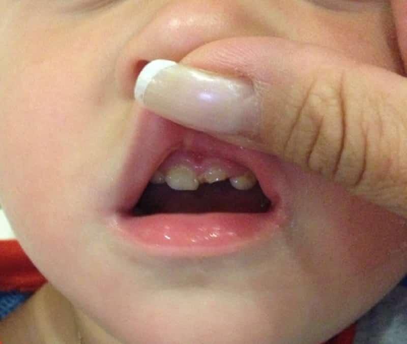 Откололся передний зуб что делать