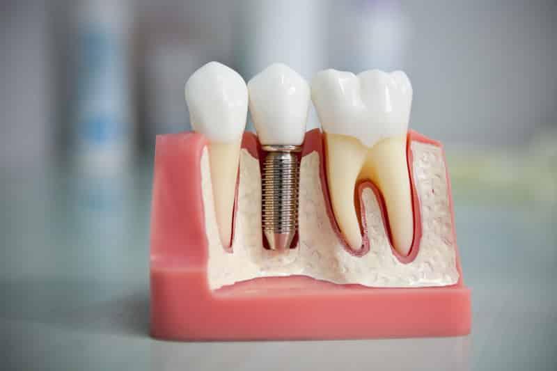 имплантация протезирование зубов