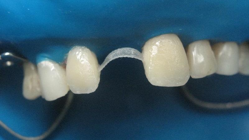адгезивный мостовидный протез фото