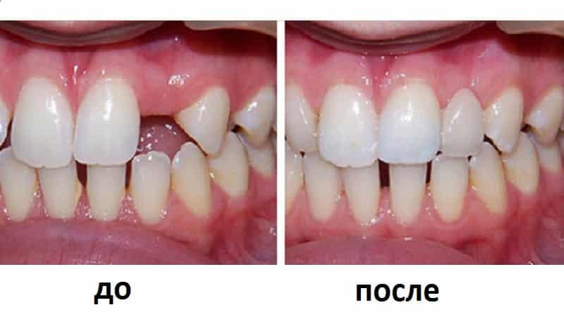 адгезивное протезирование зубов
