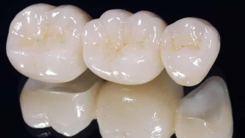 аллергия на съемные зубные протезы что делать