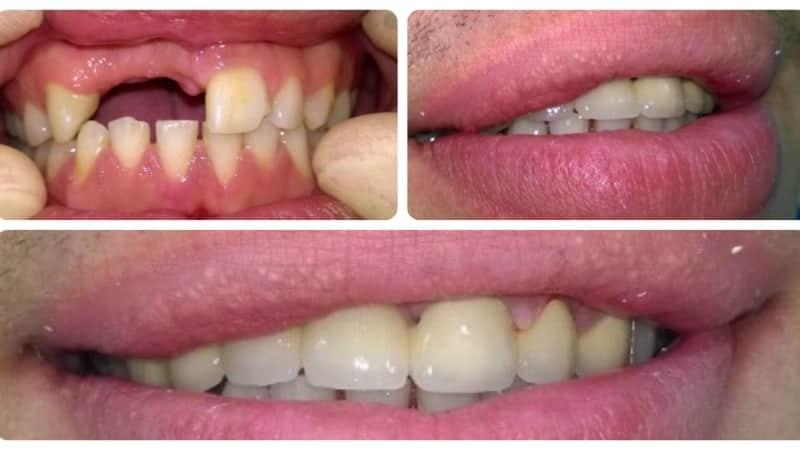 Больно ли ставить зубной имплант