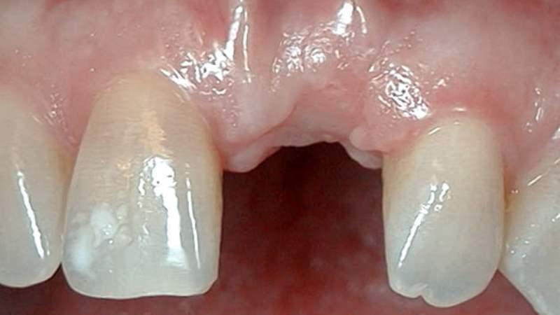 больно ли ставить импланты зубов