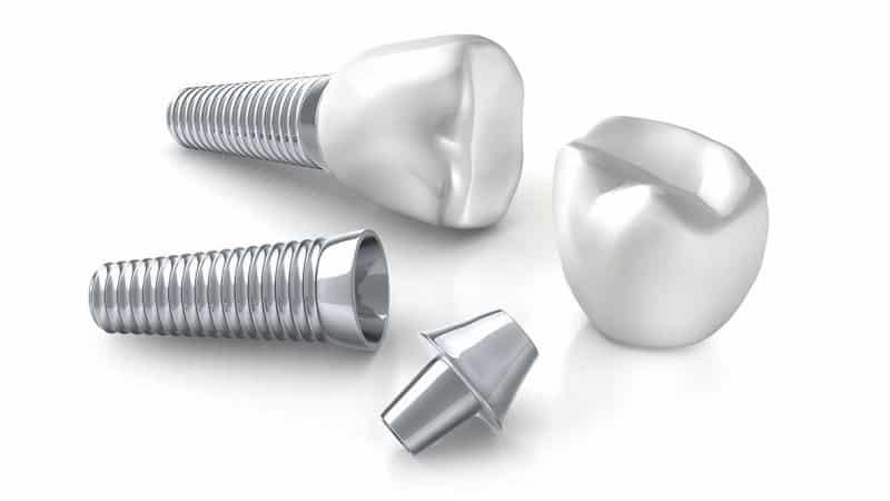 через какое после удаления зуба время можно ставить имплант