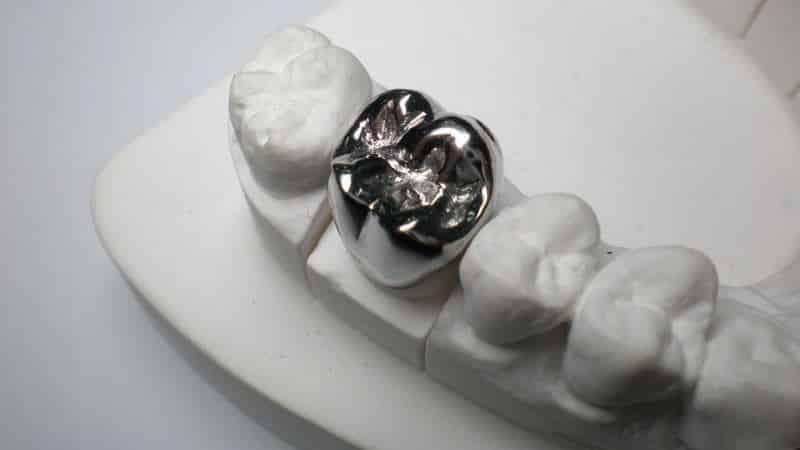 после удаления зуба когда можно ставить имплант