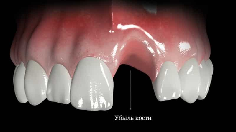 установка импланта сразу после удаления зуба