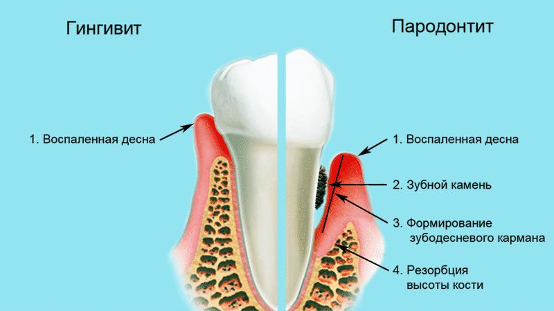 чистка зубов вектор отзывы