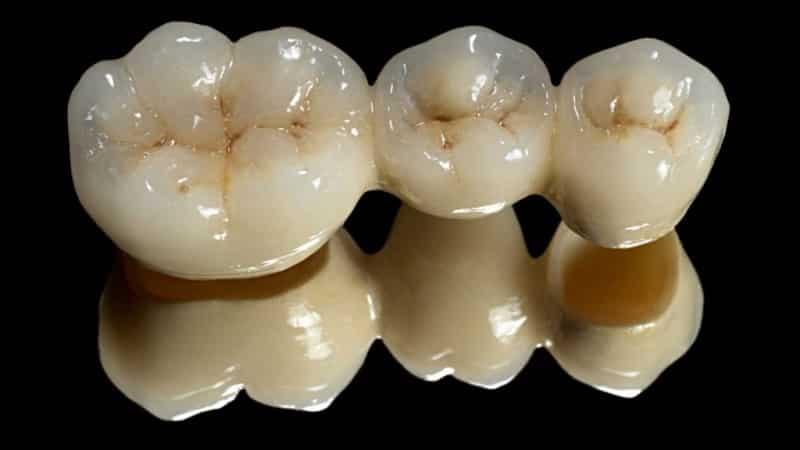 Сколько стоит пластмассовая коронка на зуб