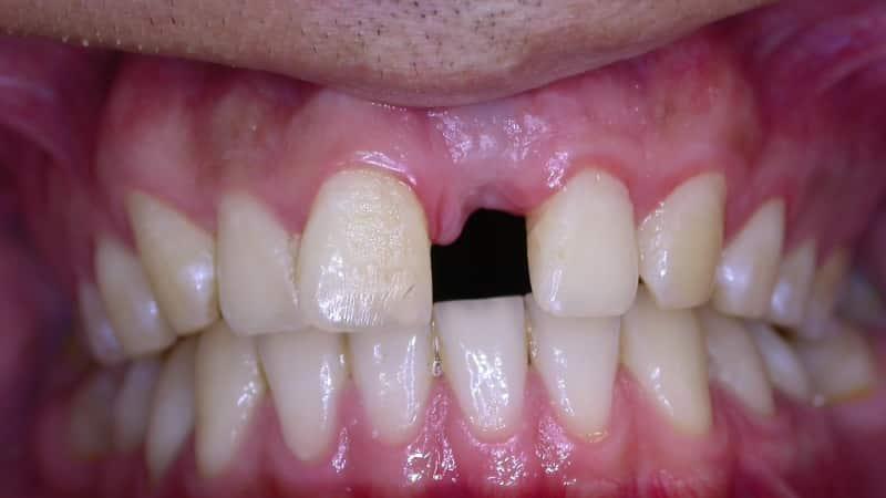 имплантация передних зубов фото до и после