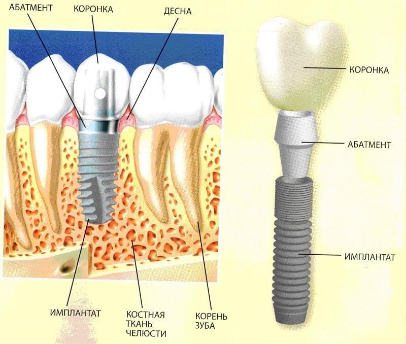 вставить зубы импланты