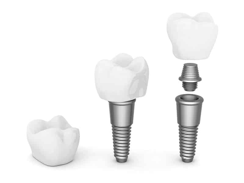 Зубные импланты: фото до и после