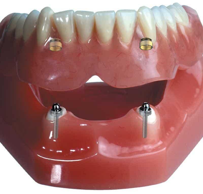 имплантант зуба