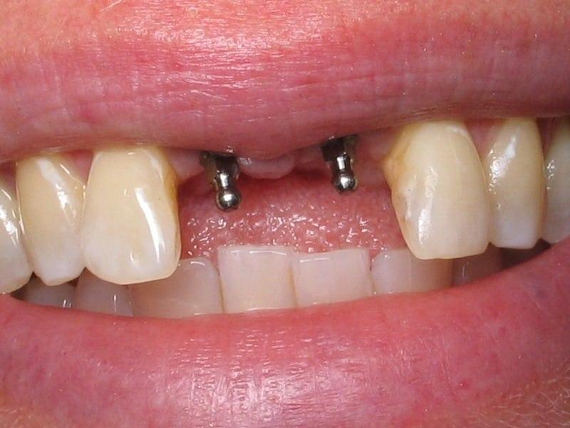 имплантация зубов что это такое фото