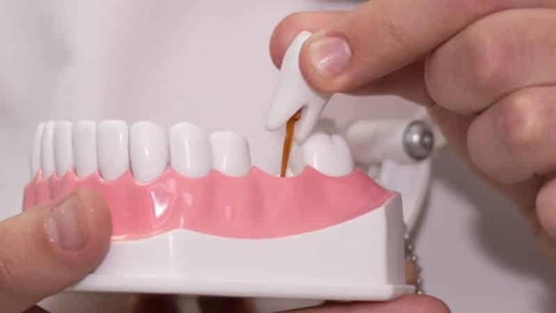 какой врач удаляет зубы