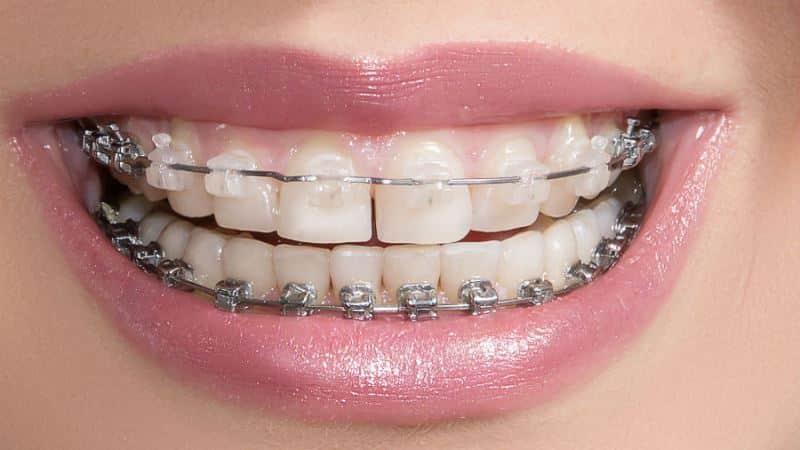 может ли зубной врач удалять зубы