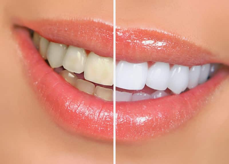чем как укрепить зубную эмаль в домашних условиях