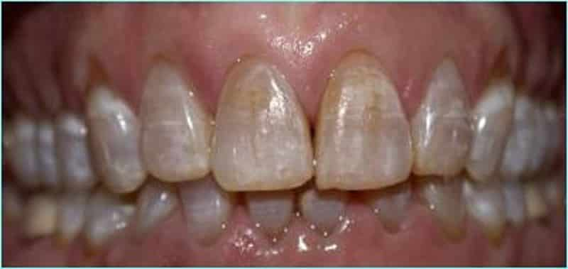 как укрепить эмаль зубов в домашних условиях народными средствами