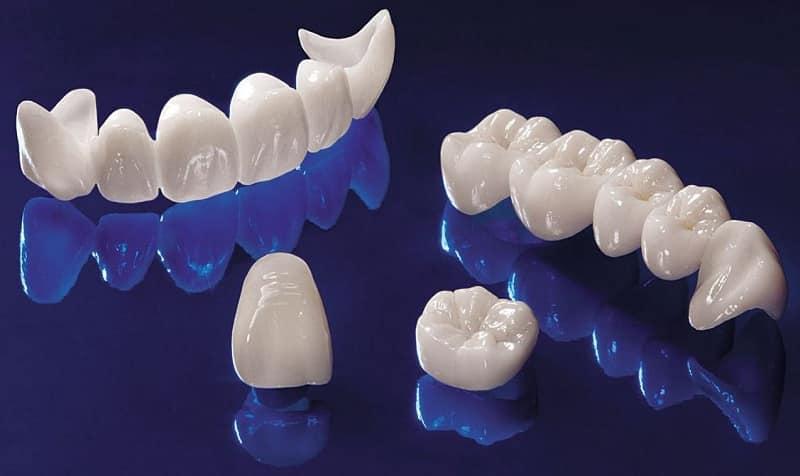 какие коронки лучше ставить на передние зубы жевательные коренные