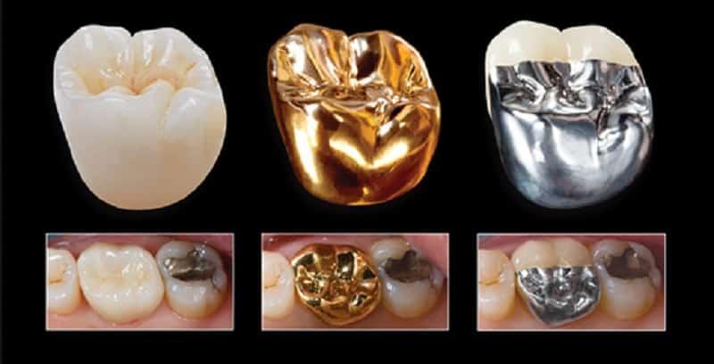 какие зубные коронки лучше для зубов
