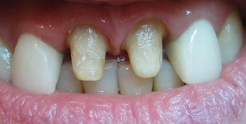 какую коронку лучше поставить на жевательные зубы