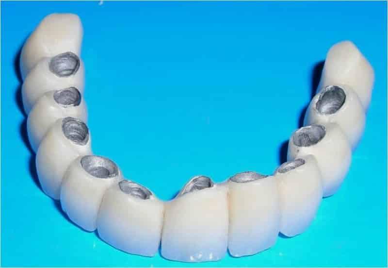 какая коронка лучше на жевательный зуб керамика или металлокерамика