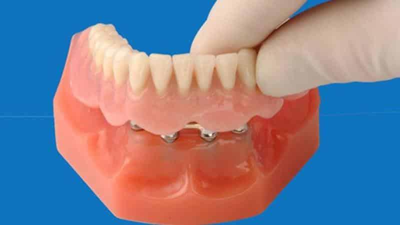 виды съемных зубных протезов при отсутствии задних зубов