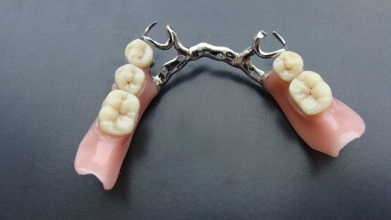протезы зубов съемные протезы