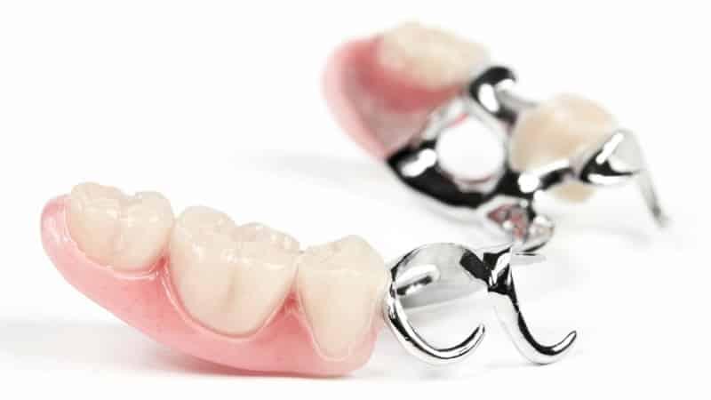виды съемных зубных протезов фото