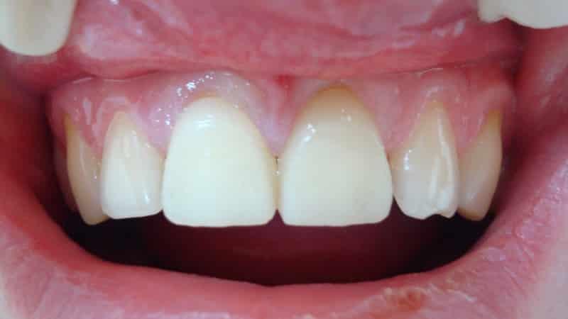какие зубы лучше вставить пластмассовые или керамические
