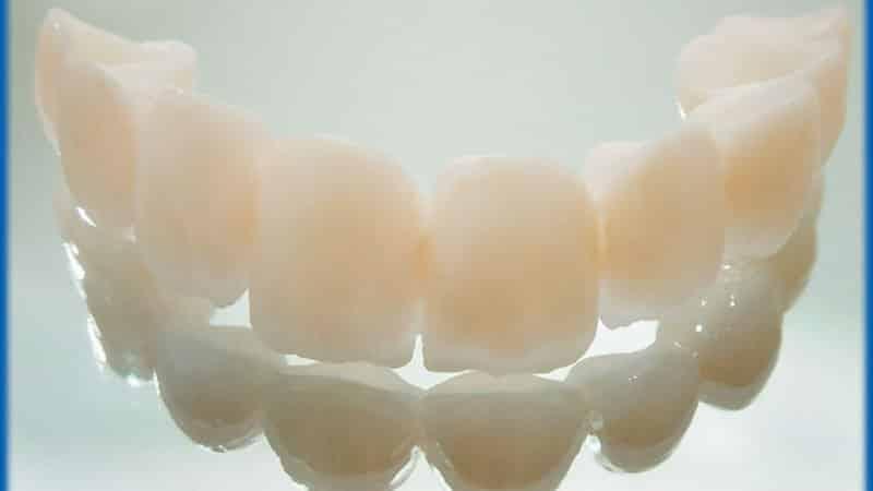 сколько стоит пластмассовая коронка на зуб отзывы