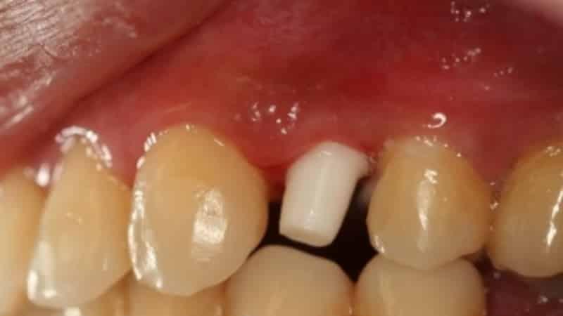 пластмассовые зубы на зубы фото