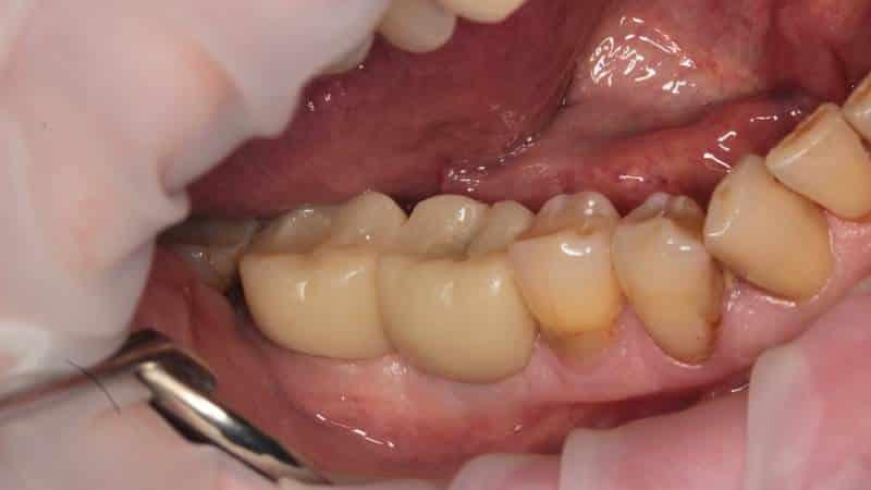 пластмассовые коронки на жевательные зубы