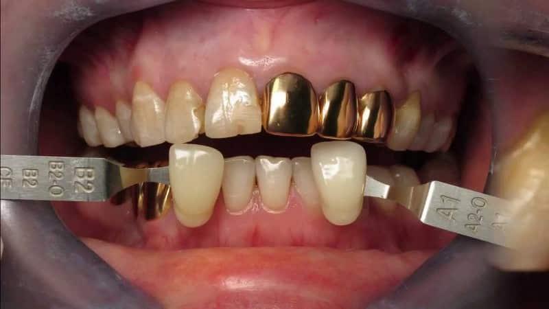 коронки на зубы фото до и после