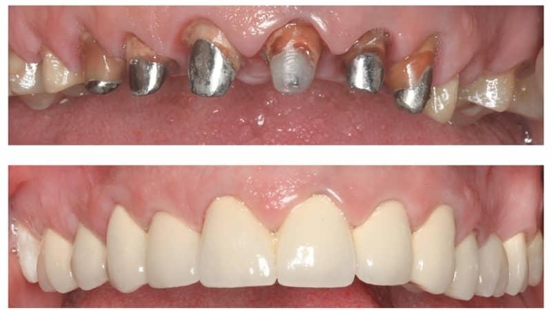 коронки на зубы какие лучше фото