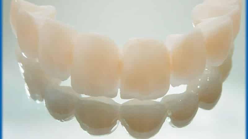 что такое коронка на зуб фото