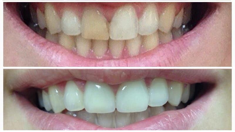 керамические коронки на передние зубы фото до и после