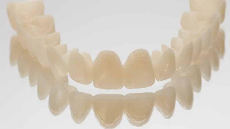 временные коронки на передние зубы фото