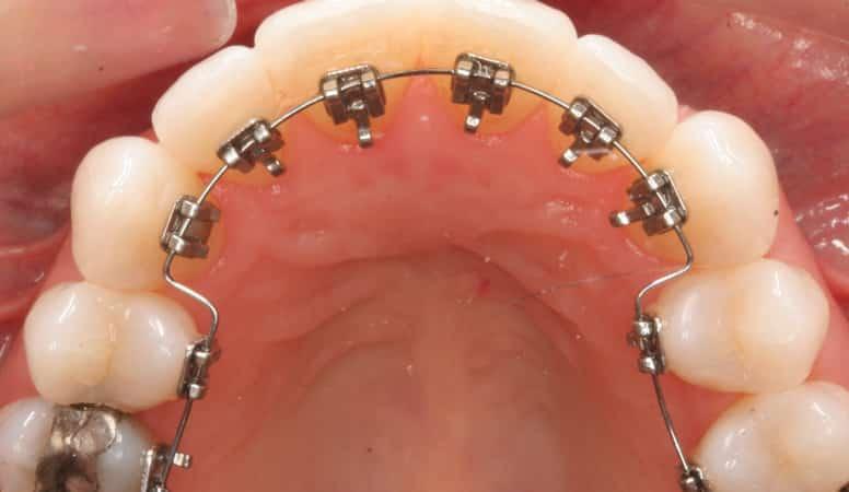 После удаления зуба мудрости болит десна почему 16