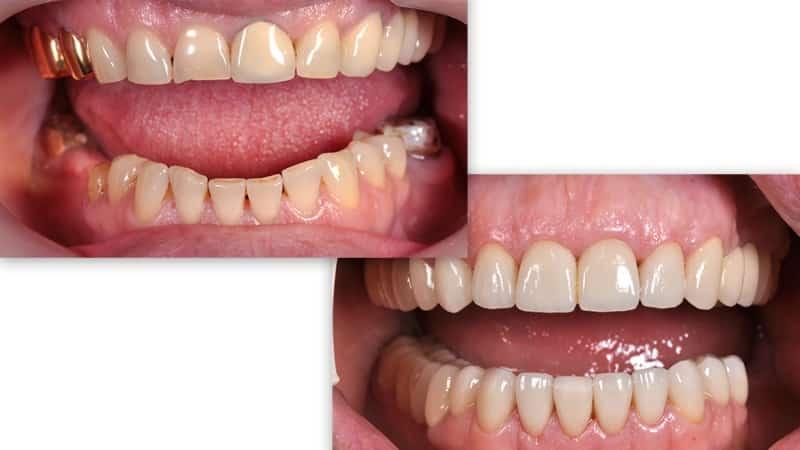 металлокерамические коронки на передние зубы фото до и после