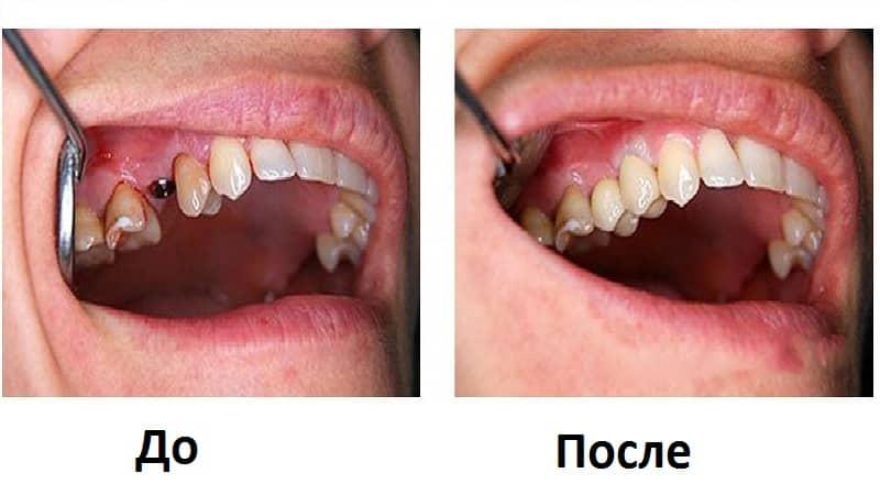 как выглядит металлокерамическая коронка фото до и после