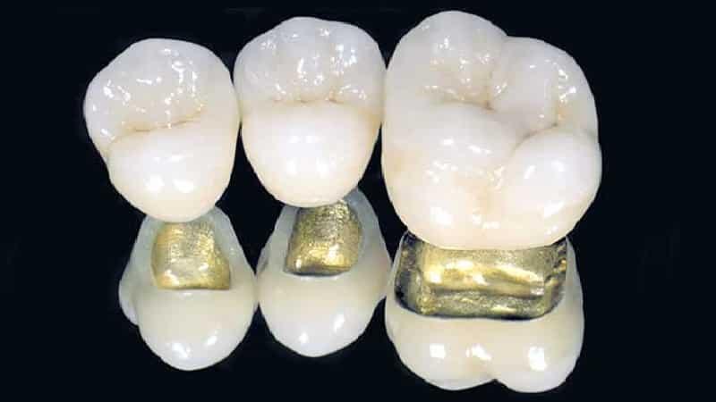металлокерамика зубы фото до и после