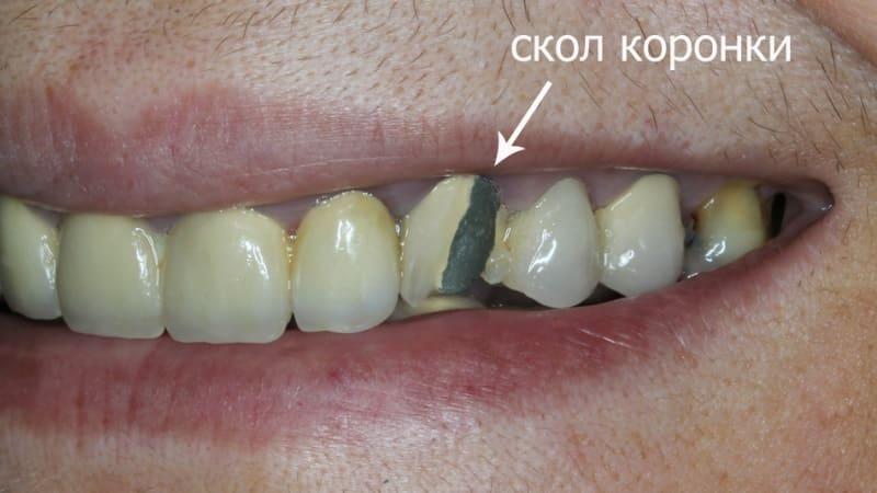 можно ли отбелить металлокерамические зубы фото